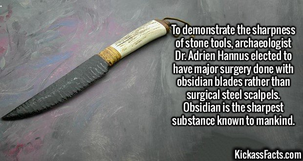 2080 Obsidian Blade Surgery-To demonstrate the sharpness of stone tools, archaeologist Dr. Adrien Hannus elected to have major surgery done with obsidian blades rather than surgical steel scalpels. Obsidian is the sharpest substance known to mankind.