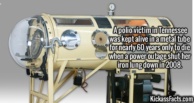 2084 Dianne Odell-A polio victim in Tennessee was kept alive in a metal tube for nearly 60 years only to die when a power outage shut her iron lung down in 2008.