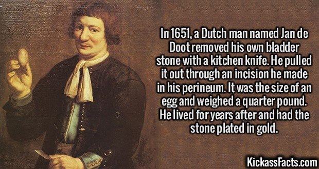2133 Jan de Doot-In 1651, a Dutch man named Jan de Doot removed his own bladder stone with a kitchen knife. He pulled it out through an incision he made in his perineum. It was the size of an egg and weighed a quarter pound. He lived for years after and had the stone plated in gold.