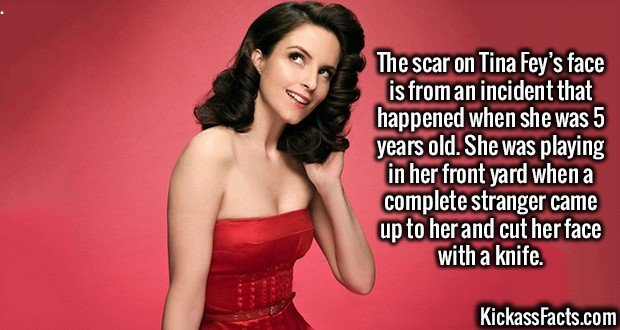 2242 Tina Fey-The scar on Tina Fey's face is from an incident that happened when she was 5 years old. She was playing in her front yard when a complete stranger came up to her and cut her face with a knife.