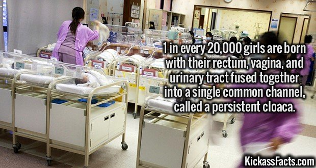 2742 Persistent Cloaca-1 in every 20,000 girls are born with their rectum, vagina, and urinary tract fused together into a single common channel, called a persistent cloaca.
