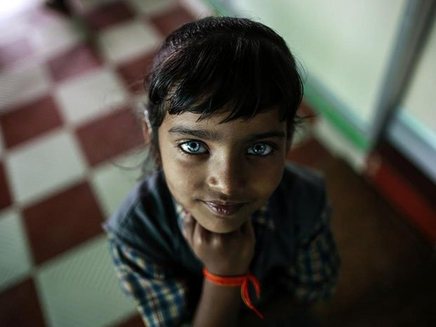 09. Survivor of Bhopal Disaster