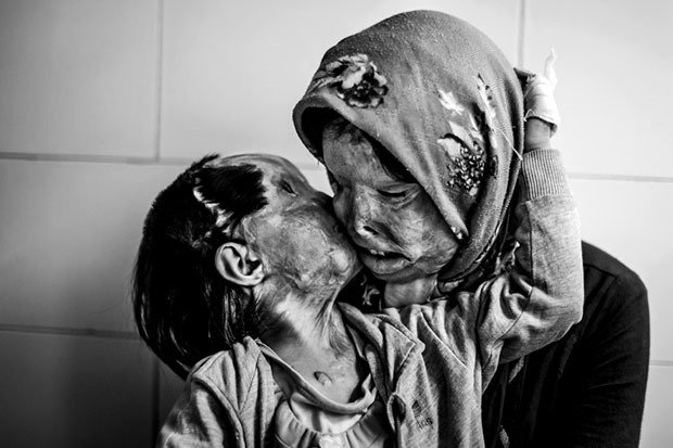 10. Victims of Acid Attack