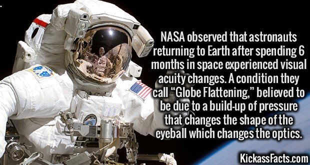 """3386 Globe Flattening-NASA observed that astronauts returning to Earth after spending 6 months in space experienced visual acuity changes. A condition they call """"Globe Flattening,"""" believed to be due to a build-up of pressure that changes the shape of the eyeball which changes the optics."""