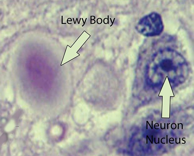 Lewy body