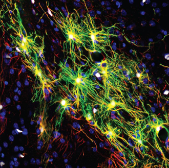 scientist-inject-human-cells-in-mouse-brain-cells