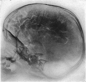 Pneumoencephalography