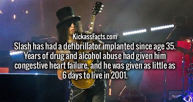 Slash has had a defibrillator implanted since age 35. Years of drug and alcohol abuse had given him congestive heart failure, and he was given as little as 6 days to live in 2001.