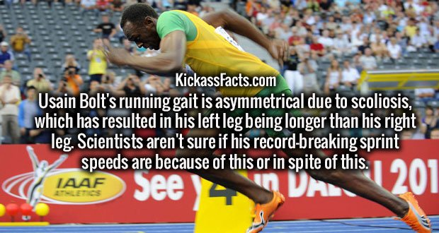 Usain Bolt's running gait is asymmetrical due to scoliosis, which has resulted in his left leg being longer than his right leg. Scientists aren't sure if his record-breaking sprint speeds are because of this or in spite of this.