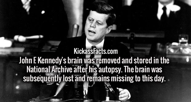 John F. Kennedy's brain was removed and stored in the National Archive after his autopsy. The brain was subsequently lost and remains missing to this day.
