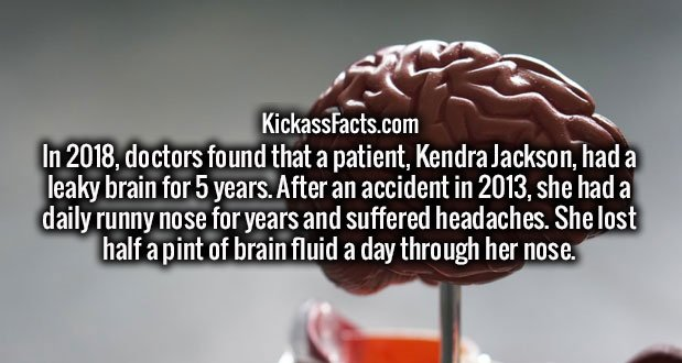 In 2018, doctors found that a patient, Kendra Jackson, had a leaky brain for 5 years. After an accident in 2013, she had a daily runny nose for years and suffered headaches. She lost half a pint of brain fluid a day through her nose.