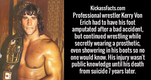 Professional wrestler Kerry Von Erich had to have his foot amputated after a bad accident, but continued wrestling while secretly wearing a prosthetic, even showering in his boots so no one would know. His injury wasn't public knowledge until his death from suicide 7 years later.