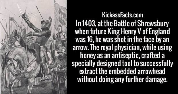In 1403, at the Battle of Shrewsbury when future King Henry V of England was 16, he was shot in the face by an arrow. The royal physician, while using honey as an antiseptic, crafted a specially designed tool to successfully extract the embedded arrowhead without doing any further damage.