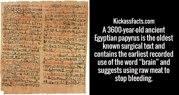 """A 3600-year-old ancient Egyptian papyrus is the oldest known surgical text and contains the earliest recorded use of the word """"brain"""" and suggests using raw meat to stop bleeding."""