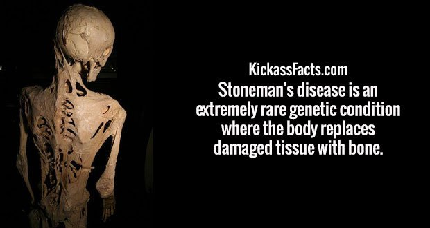 Stoneman's disease is an extremely rare genetic condition where the body replaces damaged tissue with bone.