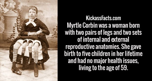 Myrtle Corbin was a woman born with two pairs of legs and two sets of internal and external reproductive anatomies. She gave birth to five children in her lifetime and had no major health issues, living to the age of 59.